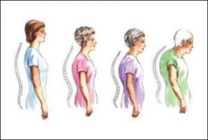 Back_Posture